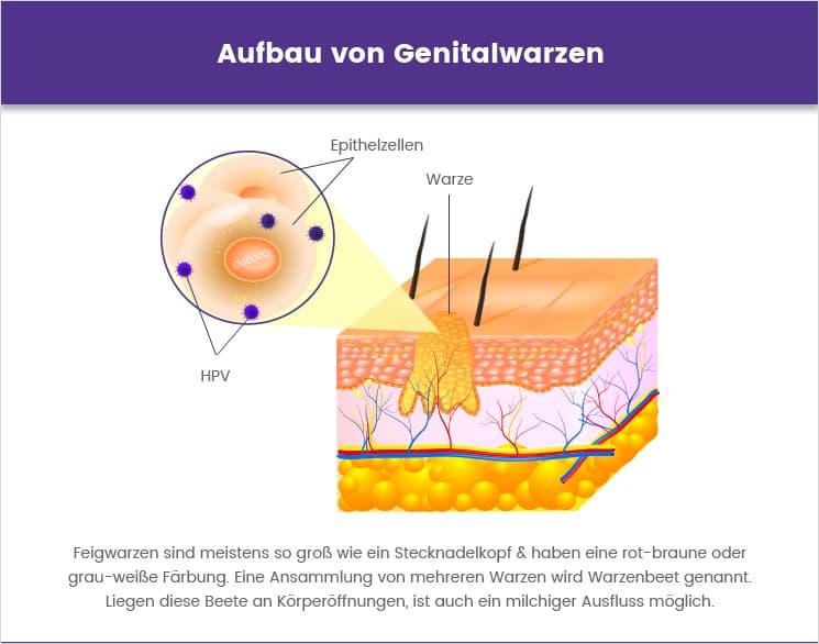 Hautarzt oder feigwarzen urologe Feigwarzen ansteckung