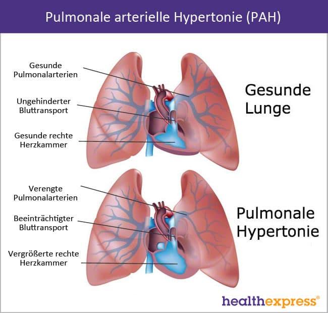 Pulmonale Hypertonie Lebenserwartung