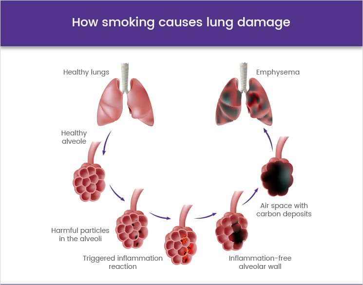 How smoking causes lung damage