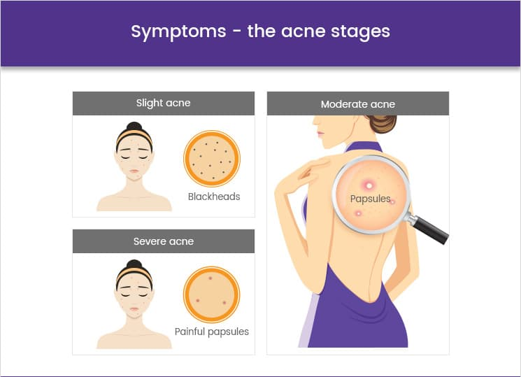 Symptoms the acne stages