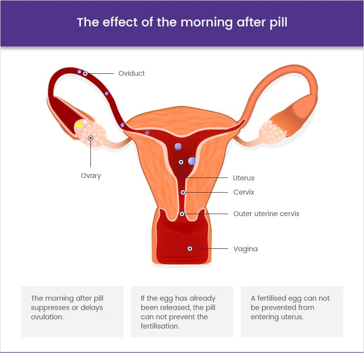 The effect of the morning after pill