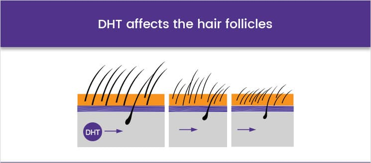 DHT affects the hair follicles