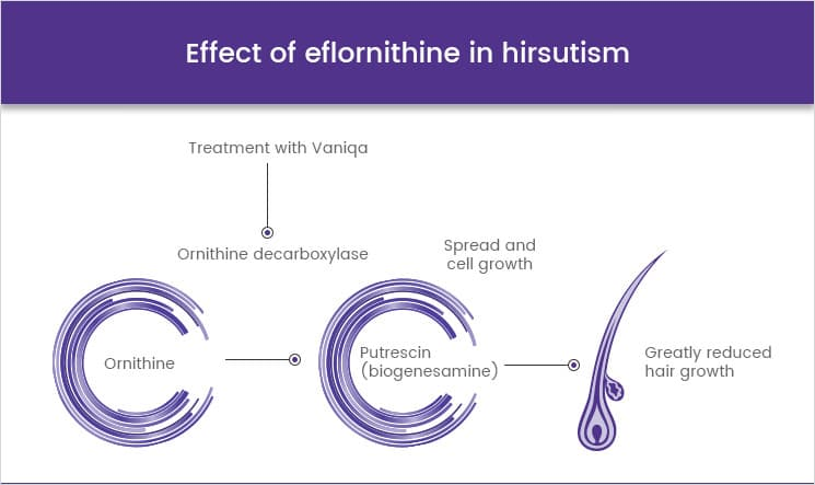 Effect of eflornithine in hirsutism