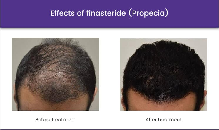 effects of finasteride