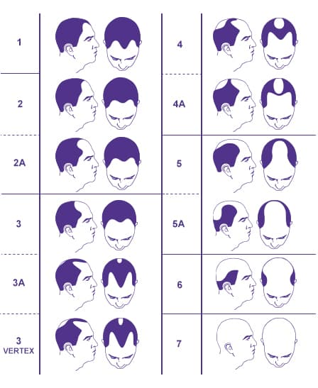 male-hair-loss-patern